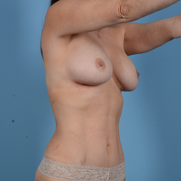 Breast Revision Gallery - Patient 53263667 - Image 4