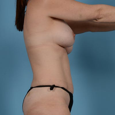 Breast Revision Gallery - Patient 53263667 - Image 5