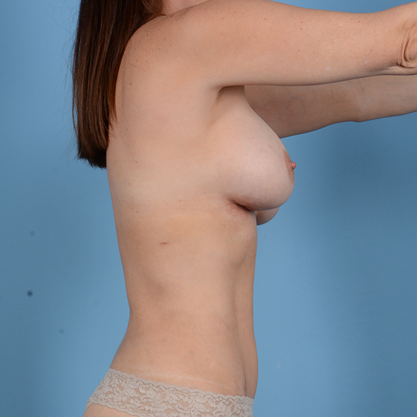 Breast Revision Gallery - Patient 53263667 - Image 6