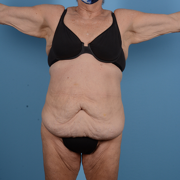 Tummy Tuck Gallery - Patient 53263684 - Image 1