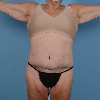 Tummy Tuck Gallery - Patient 53263684 - Image 2