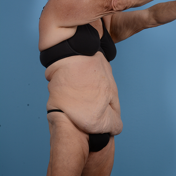 Tummy Tuck Gallery - Patient 53263684 - Image 3