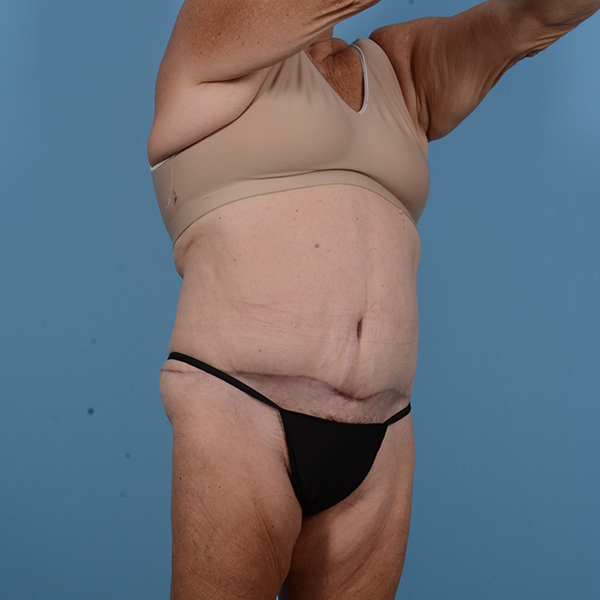 Tummy Tuck Gallery - Patient 53263684 - Image 4