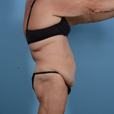 Tummy Tuck Gallery - Patient 53263684 - Image 5