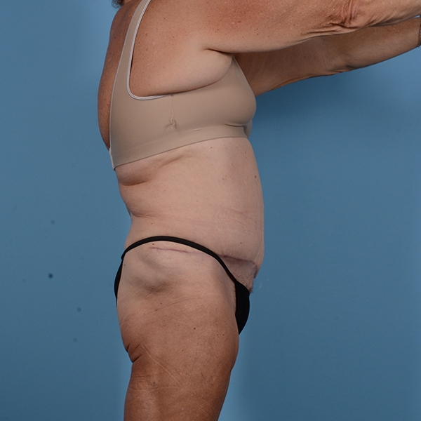 Tummy Tuck Gallery - Patient 53263684 - Image 6