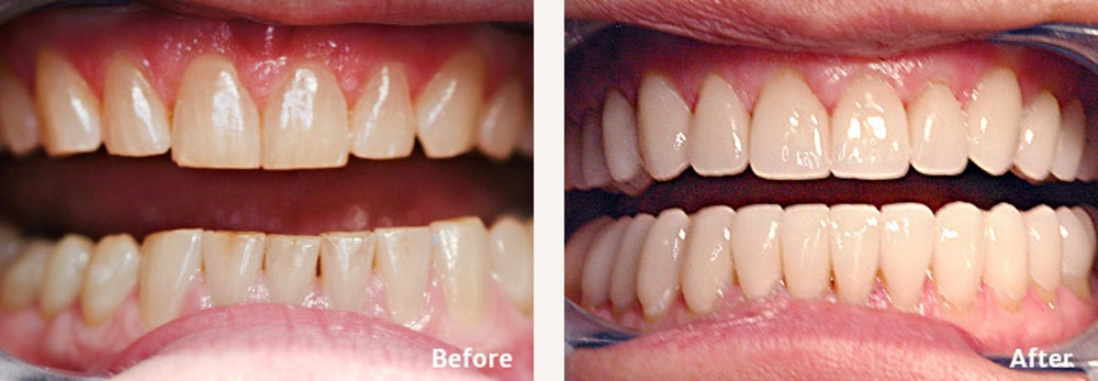 Full Mouth Reconstruction Gallery - Patient 9747002 - Image 1