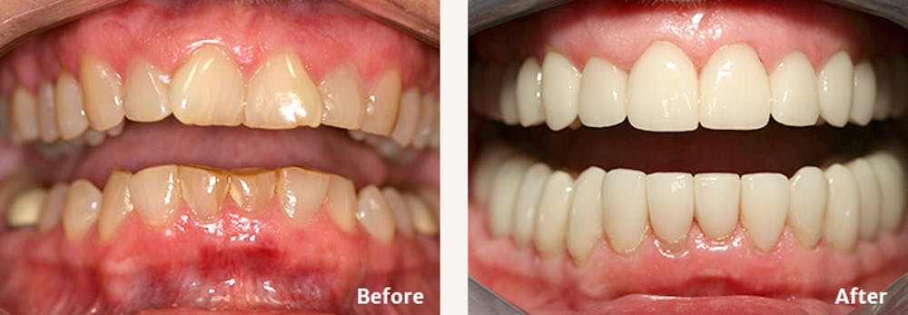 Full Mouth Reconstruction Gallery - Patient 9747003 - Image 1