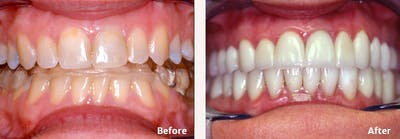 Full Mouth Reconstruction Gallery - Patient 9747004 - Image 3