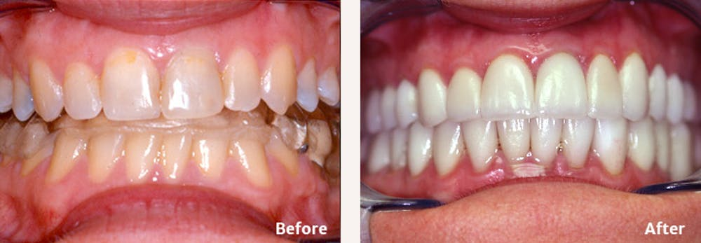 Full Mouth Reconstruction Gallery - Patient 9747004 - Image 1