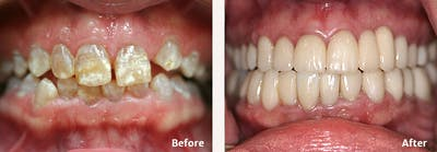 Full Mouth Reconstruction Gallery - Patient 9747005 - Image 4
