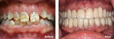 Full Mouth Reconstruction Gallery - Patient 9747005 - Image 1