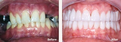 Full Mouth Reconstruction Gallery - Patient 9747006 - Image 5