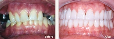 Full Mouth Reconstruction Gallery - Patient 9747006 - Image 1