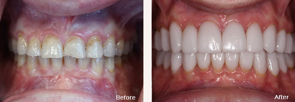 Full Mouth Reconstruction Gallery - Patient 24397946 - Image 1