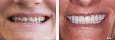Full Mouth Reconstruction Gallery - Patient 24397946 - Image 2