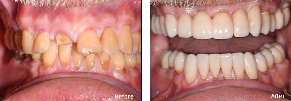 Full Mouth Reconstruction Gallery - Patient 25280958 - Image 1