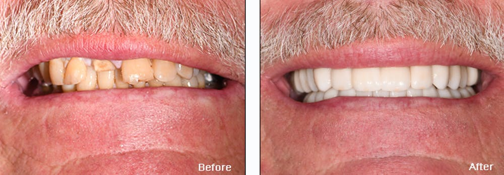 Full Mouth Reconstruction Gallery - Patient 25280958 - Image 2