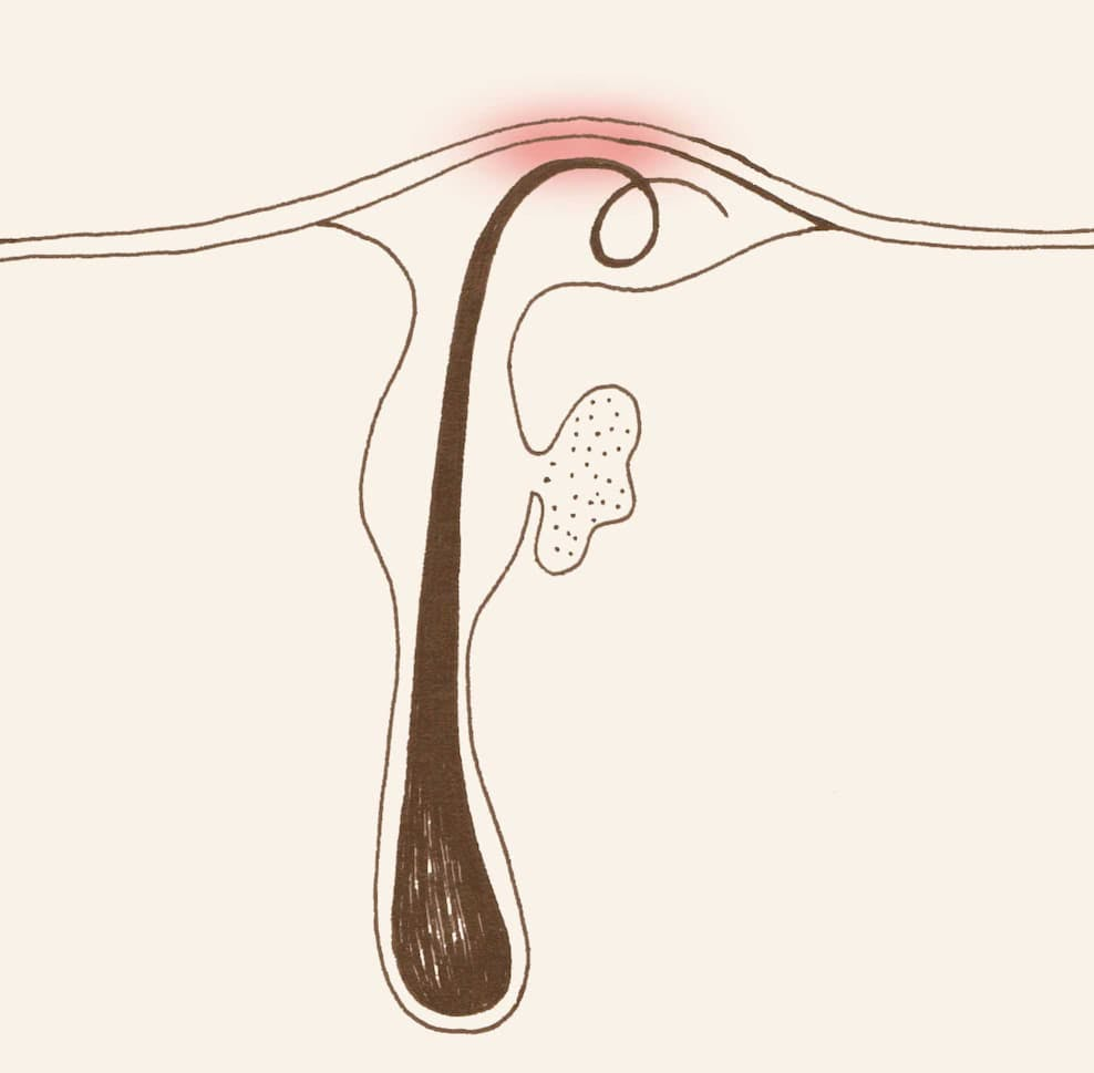 An illustration of an ingrown hair, trapped under dead skin and causing redness and inflamation