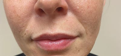 Dermal Fillers Gallery - Patient 10895312 - Image 2
