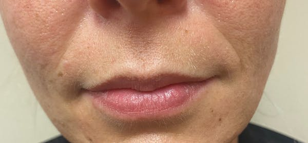 Dermal Fillers Gallery - Patient 10895312 - Image 1