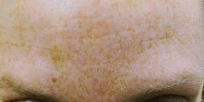 Wrinkle Relaxers Gallery - Patient 10895361 - Image 2