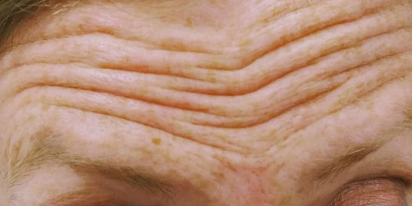 Wrinkle Relaxers