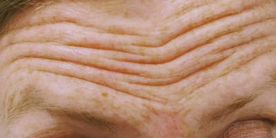 Wrinkle Relaxers Gallery - Patient 10895361 - Image 1