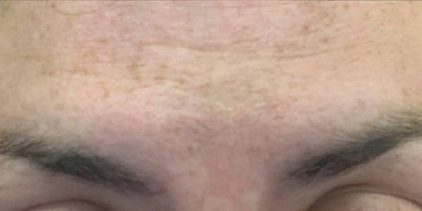 Wrinkle Relaxers Gallery - Patient 10895362 - Image 2