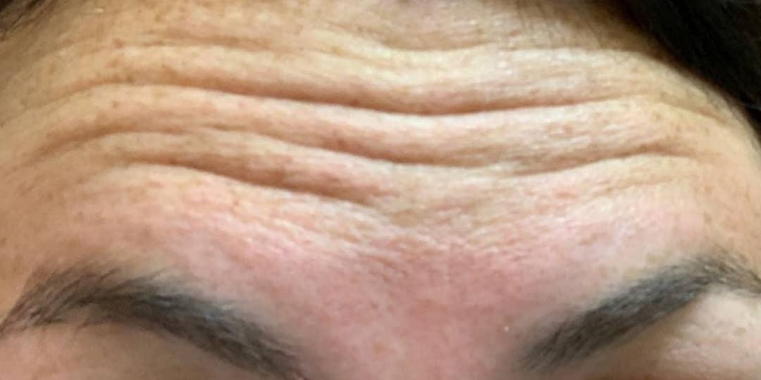 Wrinkle Relaxers Gallery - Patient 10895362 - Image 1
