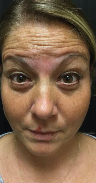 Wrinkle Relaxers Gallery - Patient 11184645 - Image 1