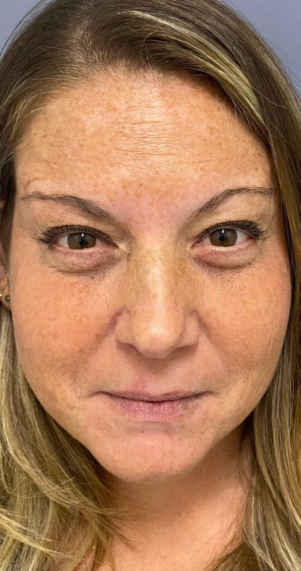 Wrinkle Relaxers Gallery - Patient 11184645 - Image 2