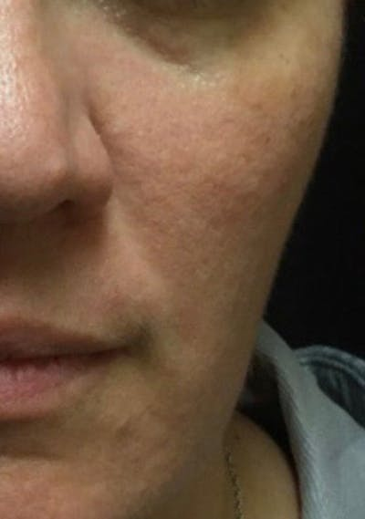 Dermal Fillers Gallery - Patient 11182654 - Image 1