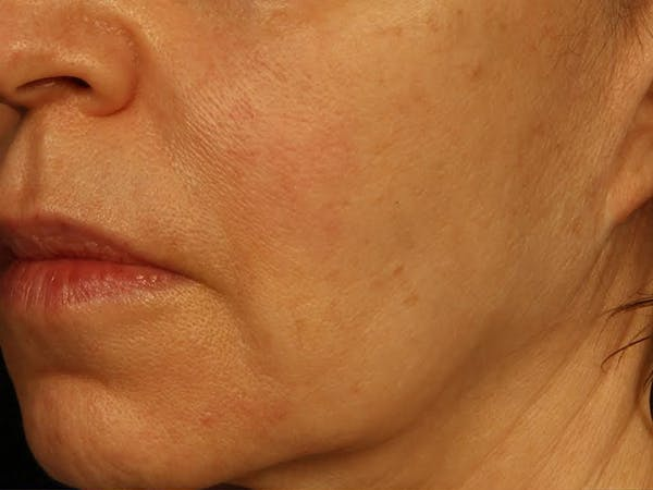 Dermal Fillers Gallery - Patient 13221696 - Image 1