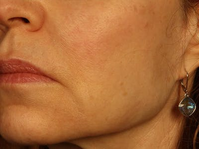 Dermal Fillers Gallery - Patient 13221696 - Image 2