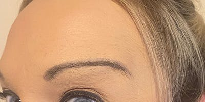 Wrinkle Relaxers Gallery - Patient 13221711 - Image 2