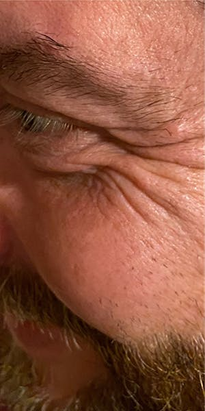 Wrinkle Relaxers Gallery - Patient 13221712 - Image 1
