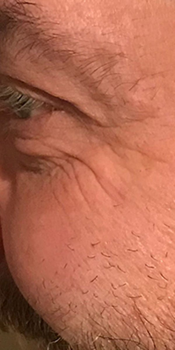 Wrinkle Relaxers Gallery - Patient 13221712 - Image 2