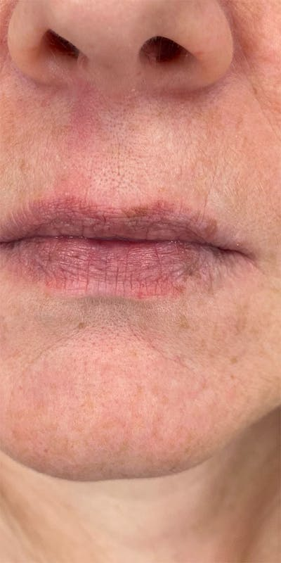 Dermal Fillers Gallery - Patient 18727160 - Image 1