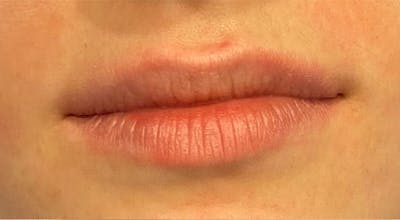 Dermal Fillers Gallery - Patient 18727161 - Image 1