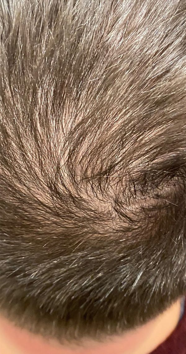 PRP Hair Restoration Gallery - Patient 18727166 - Image 1