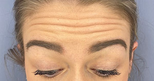 Wrinkle Relaxers Gallery - Patient 18727168 - Image 1