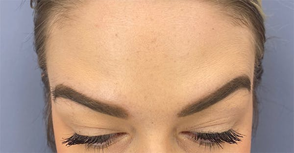 Wrinkle Relaxers Gallery - Patient 18727168 - Image 2