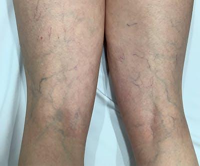 Laser Vein Treatment Gallery - Patient 23532101 - Image 1