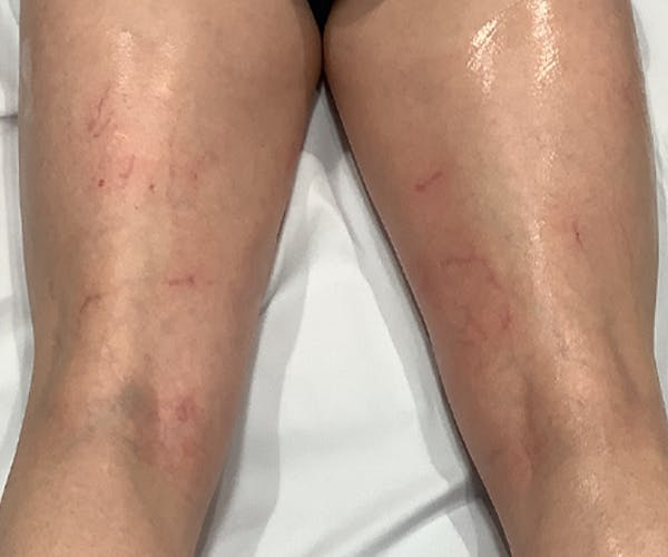Laser Vein Treatment Gallery - Patient 23532101 - Image 2