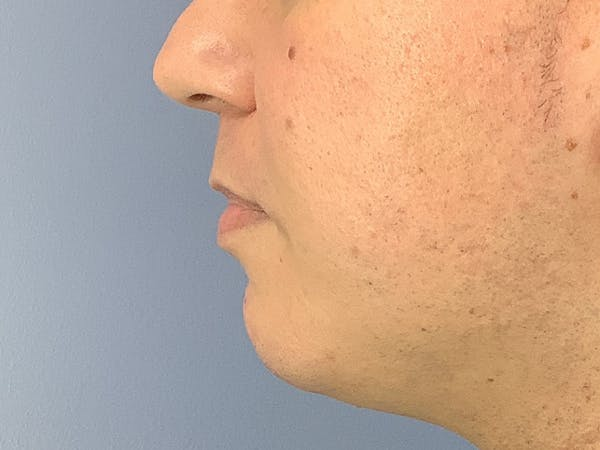 Dermal Fillers Gallery - Patient 23932832 - Image 1