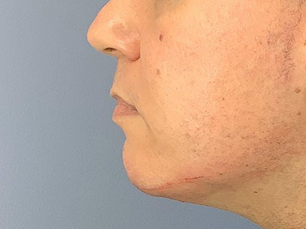 Dermal Fillers Gallery - Patient 23932832 - Image 2
