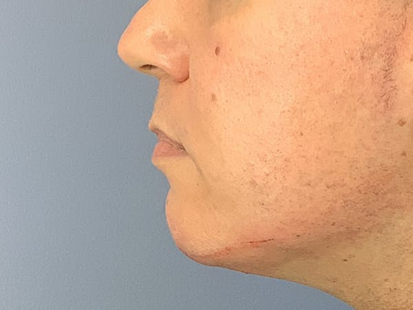 Dermal Fillers Gallery - Patient 23932832 - Image 2