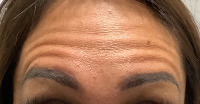 Wrinkle Relaxers Gallery - Patient 25734214 - Image 1