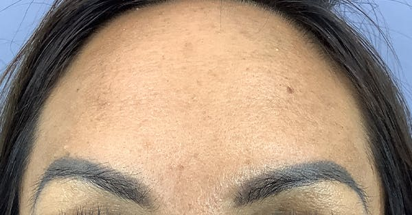 Wrinkle Relaxers Gallery - Patient 25734214 - Image 2
