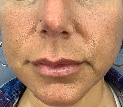 Dermal Fillers Gallery - Patient 25734198 - Image 1